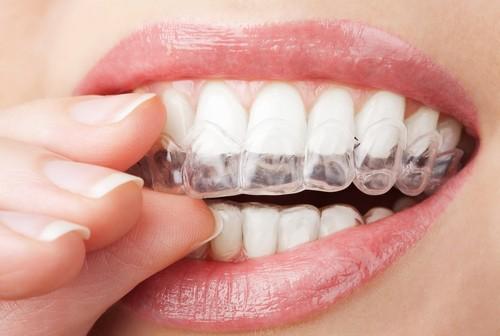Aparaty ortodontyczne odchodzą do lamusa